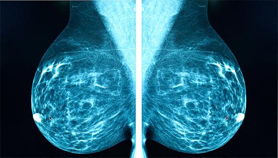 01534d586 Čo je to mamografia, ktorá je zobrazená a kedy je lepšie robiť. Čo ...